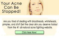 Send you a ready made website- Acne Site